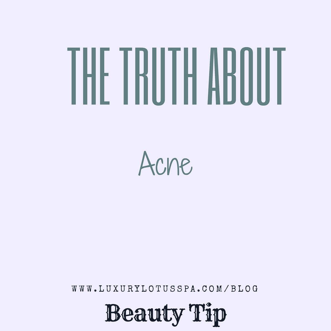 The truth about acne from a licensed esthetician help women with darker skin clear up acne and acne scars from home through Luxury Lotus Spa - a skin Care and waxing spa in tampa, Florida near university of south Florida #USF