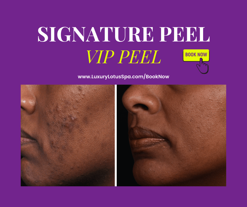 chemical peel for black and brown skin by a black esthetician in tampa, Florida