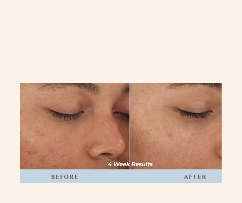 Diamond Glow Facial for acne scars on black/brown skin clients. at luxury lotus spa in tampa florida (FL) black esthetician esther the esthetician