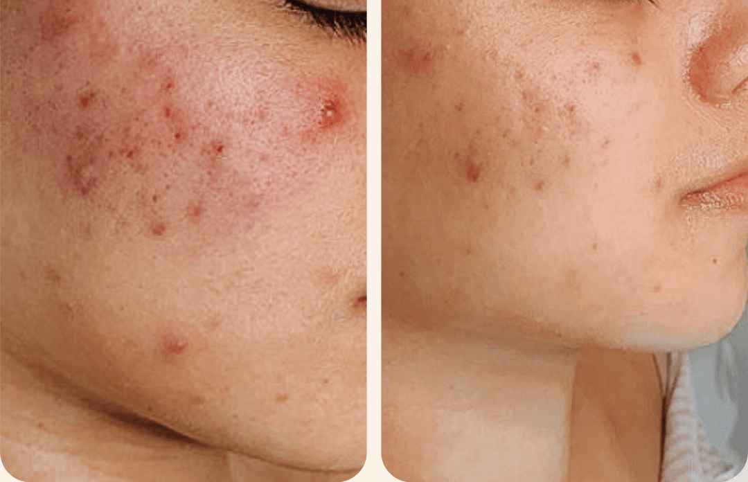 DEEP PORE CLEANSING CLEAR SKIN FACIAL TREATMENT Black esthetician med spa acne scars specialist in tampa florida (FL)